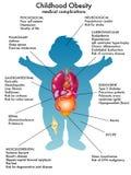 Obesità di infanzia Immagini Stock