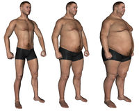 Obesity Royalty Free Stock Image