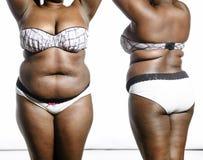 obesity Fotos de Stock Royalty Free