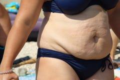 obesity Foto de Stock