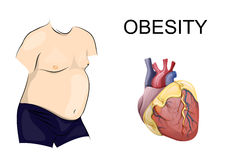 Obesity. body and heart. A fat body. Obesity heart disease Stock Image