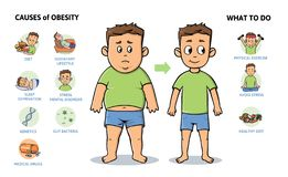 Obesity causes and prevention. Young guy before and after diet and fitness. Colorful infographic poster with text and. Obesity causes and prevention. Young guy royalty free illustration