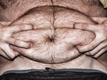 Obesity - fat belly Royalty Free Stock Images