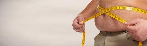 Obesity. Royalty Free Stock Image
