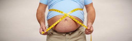 Obesity. Stock Image