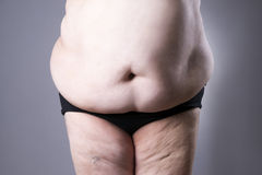 Obesity female body, fat woman belly close up. On gray background Royalty Free Stock Photography