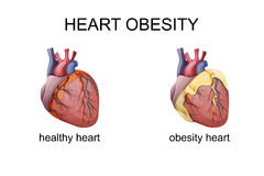The obesity heart. Illustration of obesity heart. comparison Stock Image