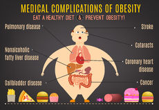 Obesity Infographics 1-09 Royalty Free Stock Photography