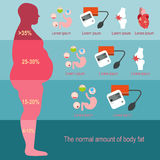 Obesity man. The degree of obesity. Vector illustration Royalty Free Stock Images