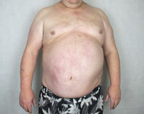 Obesity - Obese Man. Photo of an Obese Man Isolated royalty free stock images