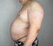 Obesity - Obese Man. Photo of an Obese Man Isolated stock images
