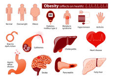 Obesity and overweight infographic. Effects on health.  Medical infographic. Set elements and symbols for your design Stock Photos