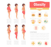 Obesity types and causes Stock Photos