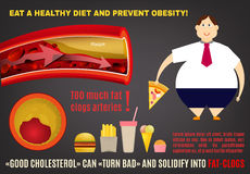 Obesity vector infopraphics Royalty Free Stock Photography
