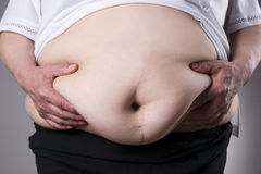 Obesity woman body, fat female belly with a scar from abdominal surgery close up Stock Photos