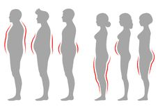 Obesity woman and man body type, vector figure overweight silhouette Royalty Free Stock Photography