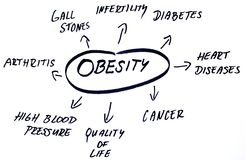 Obesity words cloud stock photo