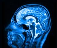 Obrazowanie rezonansem magnetycznym mózg zdjęcie royalty free