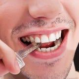 obsługuje zęby biały Zdjęcie Royalty Free