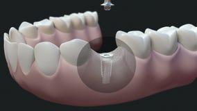 Obscuridade do implante dental ilustração royalty free