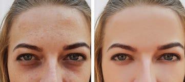 Observez le sac de fille sous les yeux avant et après des procédures de cosmétique de traitement images libres de droits