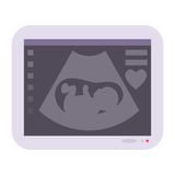 Obstetric ultrasound baby of fetus ecography scan vector illustration pregnant maternity photo. Scan photo expecting life care pregnancy sonar Royalty Free Stock Photography