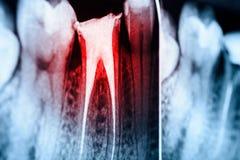 Obturación completa de los sistemas de la endodoncia en los dientes Imagen de archivo libre de regalías