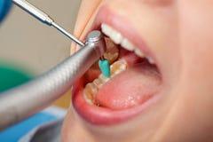 Obturación dental fotografía de archivo libre de regalías