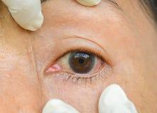 Occhi con le allergie chimiche Fotografia Stock Libera da Diritti