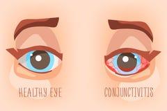 Occhi del malato, congiuntivite dell'occhio Illustrazione di Eyecare Immagine Stock Libera da Diritti