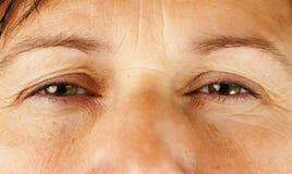 Occhi della persona molto ammalata o faticosa Fotografie Stock Libere da Diritti