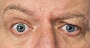 Occhi di un uomo che mostra confusione, sorpresa immagine stock
