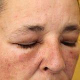 Occhi e fronte gonfiati per l'allergia Immagini Stock Libere da Diritti