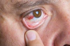 Occhi rossi del bloddshot Fotografia Stock
