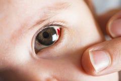 Occhi rossi del bloddshot Immagine Stock Libera da Diritti