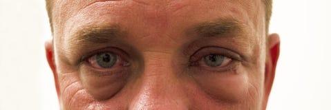Occhi rossi gonfiati di Allergie Fotografie Stock