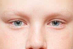 Occhi stanchi rossi in un bambino Immagine Stock