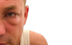 Occhio acquoso gonfiato rosso con fondo bianco Immagine Stock Libera da Diritti