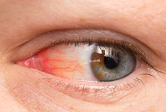Occhio cronico di congiuntivite con un'iride e un primo piano rossi del pus Fotografia Stock