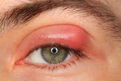 Occhio della persona di malattia con il porcile e il pus fotografia stock