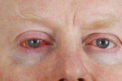 Occhio iniettato di sangue immagine stock
