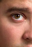 Occhio iniettato di sangue Fotografie Stock Libere da Diritti