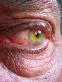 Occhio iniettato di sangue faticoso Fotografia Stock