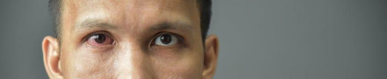 Occhio maschio iniettato di sangue rosso irritato immagine stock libera da diritti