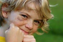 Occhio nero di combattimento del ragazzo Immagine Stock