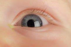 Occhio rosa (congiuntivite) Fotografia Stock