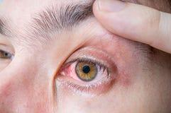 Occhio rosso irritato e danneggiato fotografie stock libere da diritti