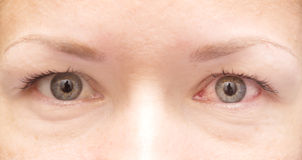 Occhio sano ed irritato Fotografia Stock