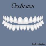 occlusion Images libres de droits