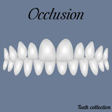 Occlusion clenched teeth. Bite, closure of teeth - incisor, canine, premolar, molar upper and lower jaw. Vector illustration for print or design of the dental Stock Image